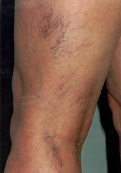 De que los asteriscos vasculares sobre la persona y los pies